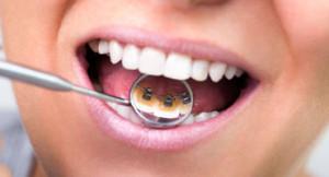 ortodonzia-studio-lucci